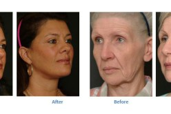 Roll Back The Years With Facelift Surgery
