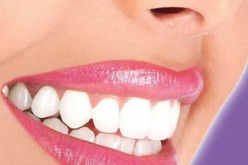 How To Get Strong And White Shining Teeth