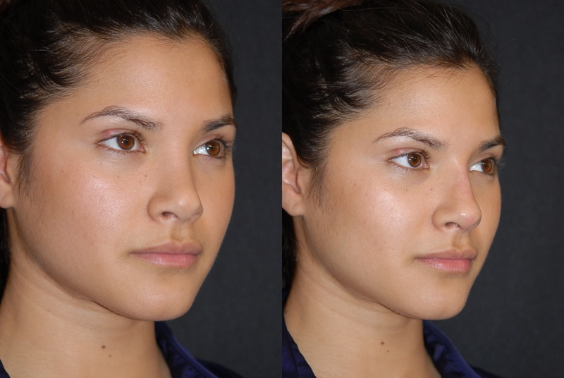 Rhinoplasty Surgeon - What Factors To Look For While Finding One ?