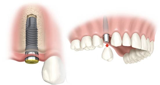 A Guide On Dental Implants For Lifetime Healthy Tooth
