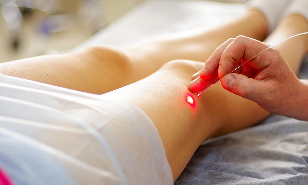 Endovenus-Laser-Treatment-EVLT