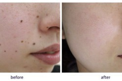 A Small Guide On Mole Removal Methods, Risks & Benefits
