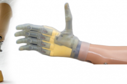Revolution In Artificial Limbs: Brings Feelings Back To Amputees!